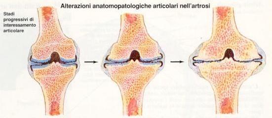 Artrosi ed Artrite: patologie differenti e spesso confuse