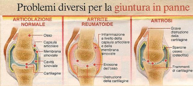 Artrite artrosi osteoartrite osteoartrosi reumatismi for Dolori articolari cause