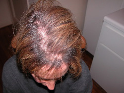 Effetto di capelli umidi che mezzi